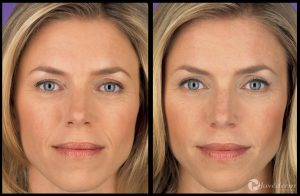 Juvederm – intradermālais filleris